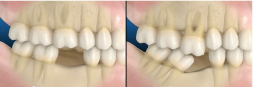 falta de dentes
